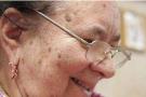 老年斑的形成原因
